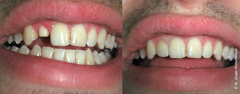 Zahnarzt Basel Kronen