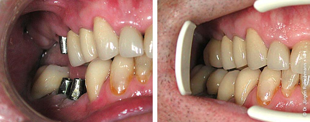 Zahnimplantate Zahnarzt Basel